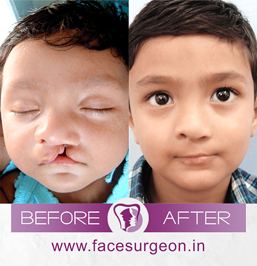 Cleft palate treatment in india