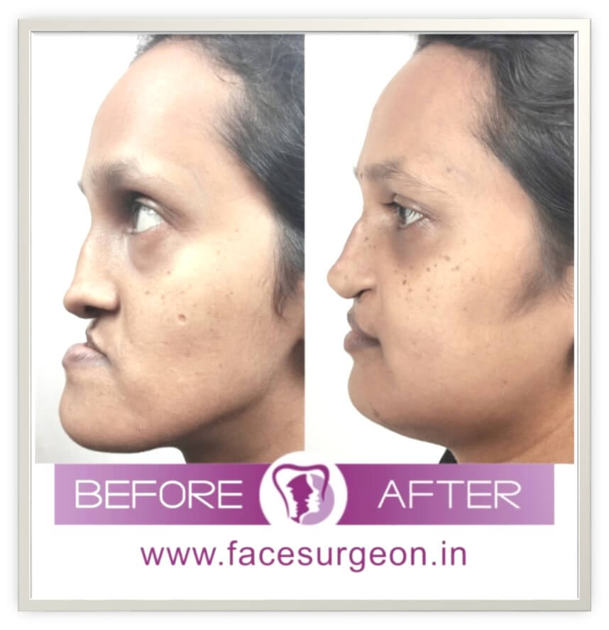 jaw surgery treatment in india