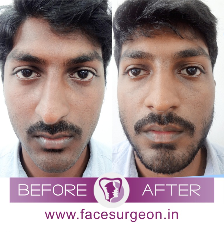 Cosmetic Nose Surgery in India