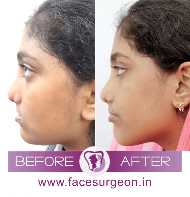 Jaw Surgery in India