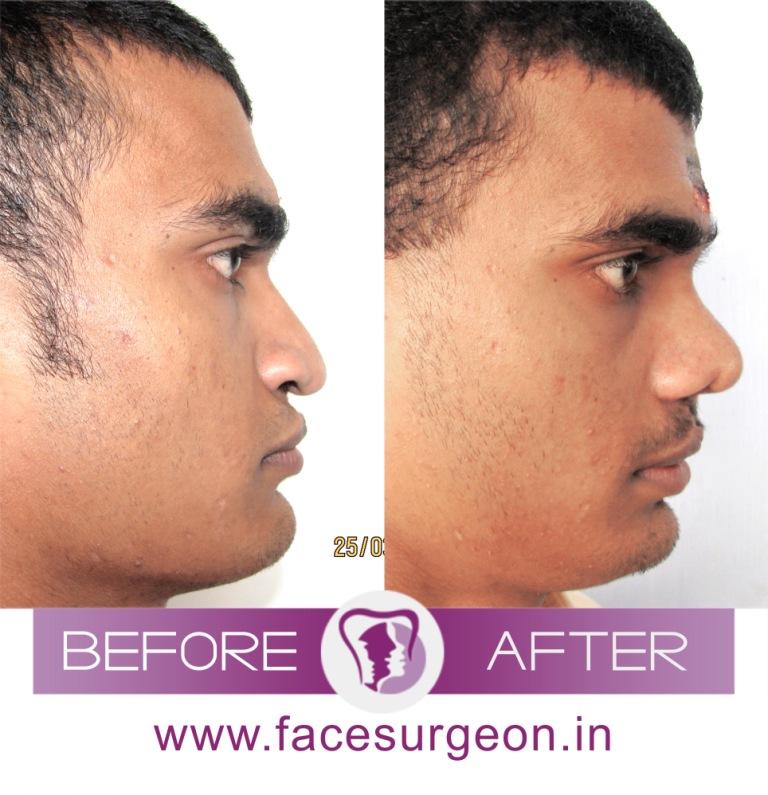 Rhinoplasty Plastic Surgery in India