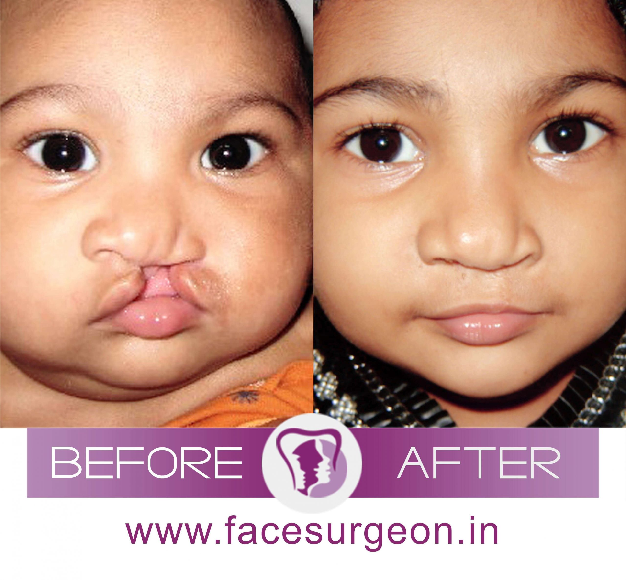 Baby Cleft Lip Surgery