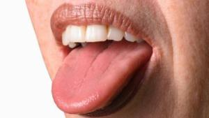 Nährstoffmangel auf der Zunge erkennen