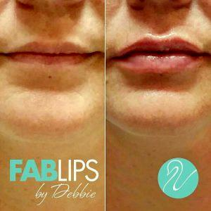 Botox Columbus Ohio: Cost And Before After Photos » Facial ...