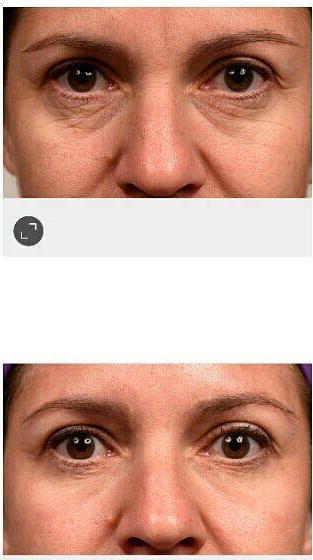 Botox Get Rid Bags Under Eyes » Facial Injections: Info ...