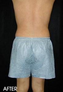Liposuction For Men Before After Sacramento