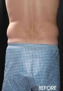 Male Liposuction Before After Sacramento