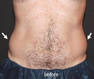 Coolsculpting For Men Before After Sacramento
