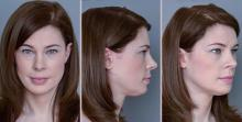 Goals of Forehead Reduction in Facial Feminization Surgery