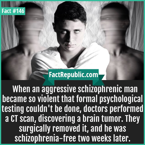 146-Schizohphrenic-mans-brain-tumor-operation-When an aggressive schizophrenic man became so violent that formal psychological testing couldn't be done, doctors performed a CT scan, discovering a brain tumor. They surgically removed it, and he was schizophrenia-free two weeks later.