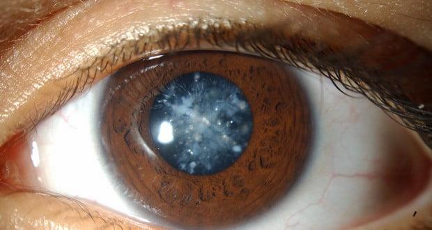 Cataract patients' senses
