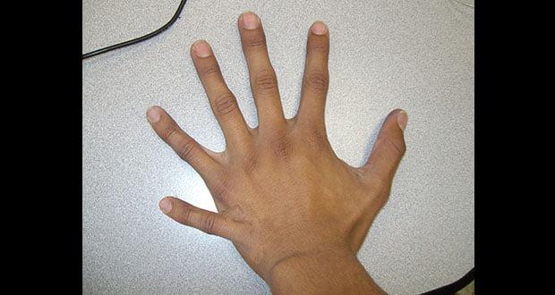 Extra Finger