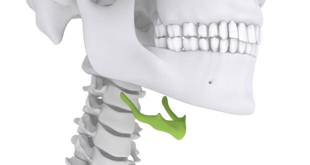 Unconnected bone