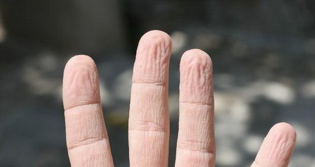 Finger Pruning