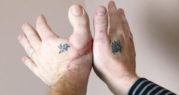 Thumb Transplant