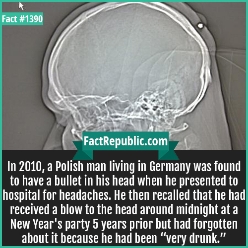 "1390. Bullet-In 2010, a Polish man living in Germany was found to have a bullet in his head when he presented to the hospital for headaches. He then recalled that he had received a blow to the head around midnight at a New Year's party 5 years prior but had forgotten about it because he had been ""very drunk."""
