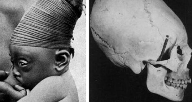Skull binding