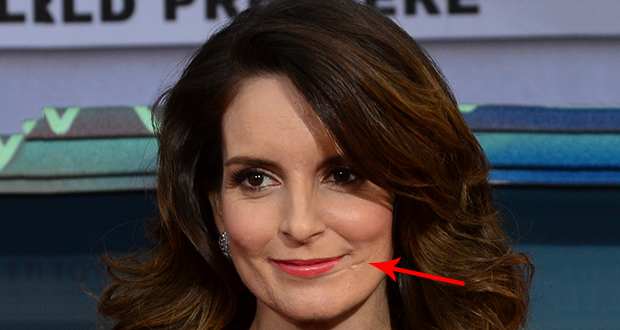 7bdf15861 The large, thin scar on Tina Fey's face came at the hands of a vicious  attacker. Fey, who was just five at the time, was playing in the front yard  of her ...