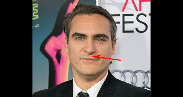 34da47772 The scar between Joaquin Phoenix's lip and the nose is obvious. It  practically had second billing in Gladiator. Many people assume that  Joaquin Phoenix's ...