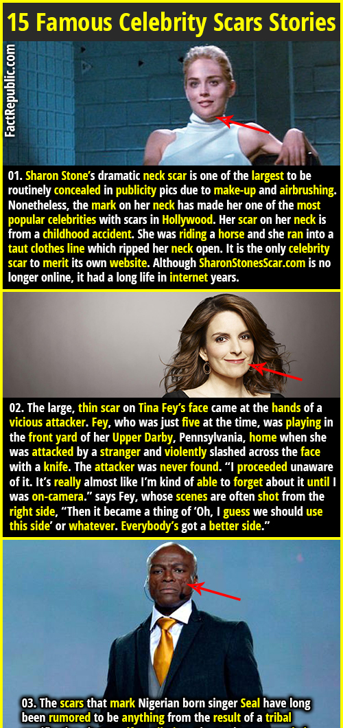 26b071177 15 Famous Celebrity Scars Stories | Fact Republic