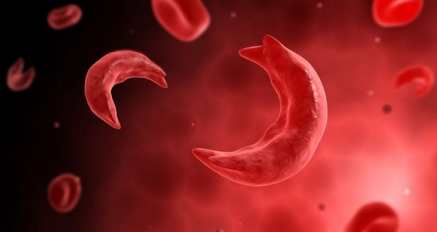 Sickle-cell anemia