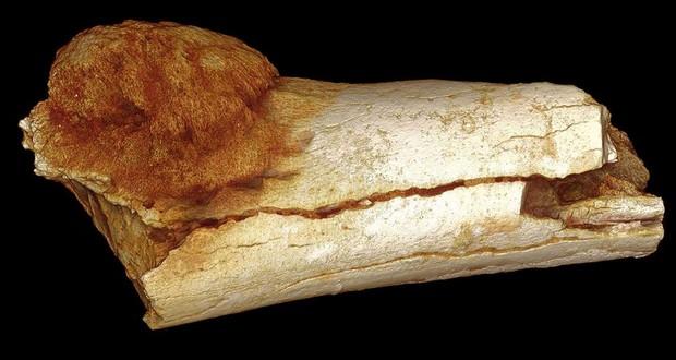 Oldest human cancer
