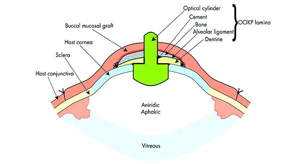 Osteo-odonto-keratoprosthesis
