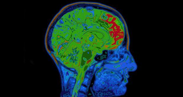 Brain's Caloric Intake