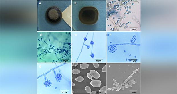 Exophiala fungus