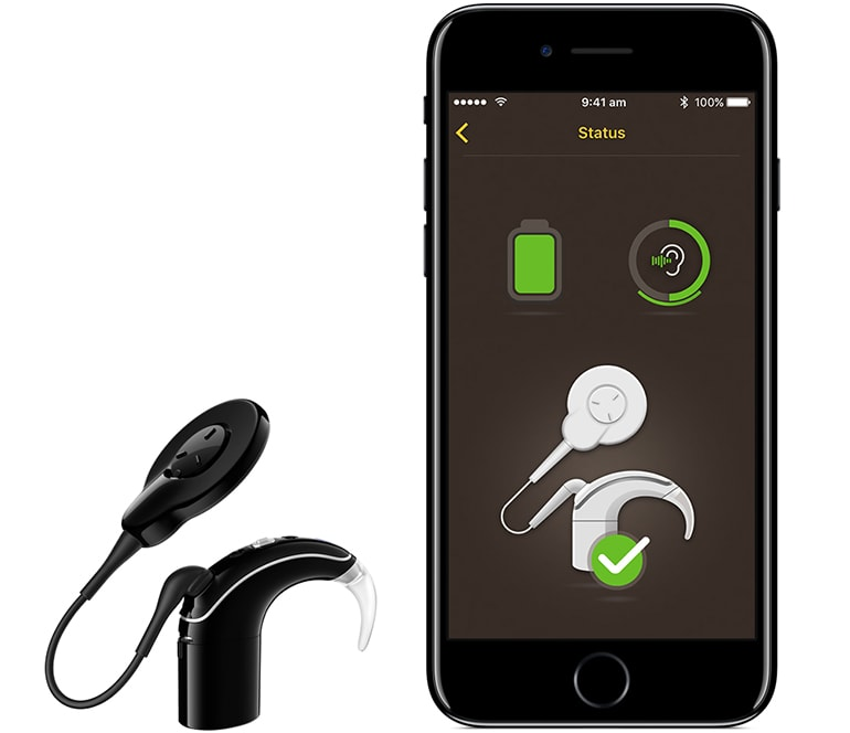 Cochlear Nucleus 7 - The First Hearing Implant made for the iPhone