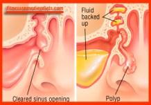 Fluid back-up