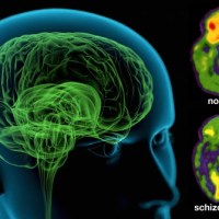 Schizophrenia (Easy-to-Read) | NIMH