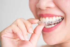 Invisalign-fairviewfamilydental