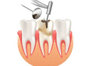 repair-filling-fairviewfamilydental
