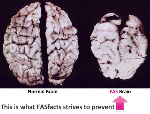 fas-brain2