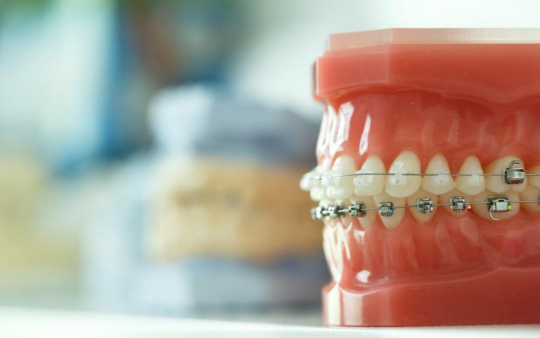 Hukum Gigi Palsu dan Behel