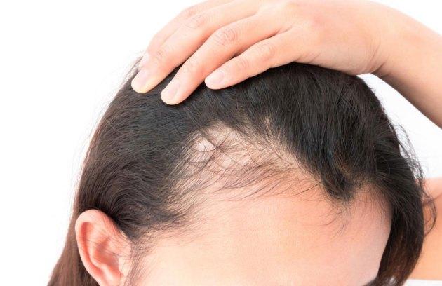 أعراض تساقط الشعر