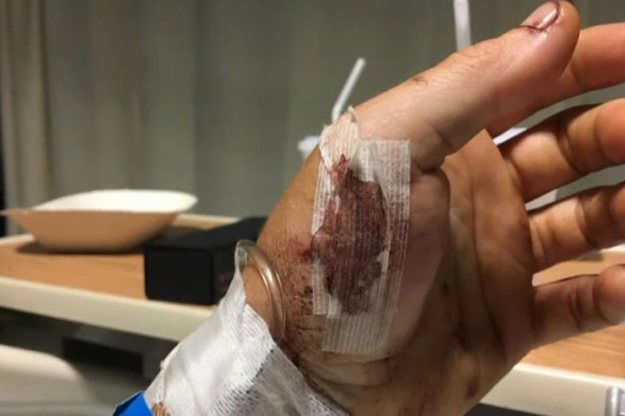 Colin Dowler Grizzly bite wounds on pocket-knife hand