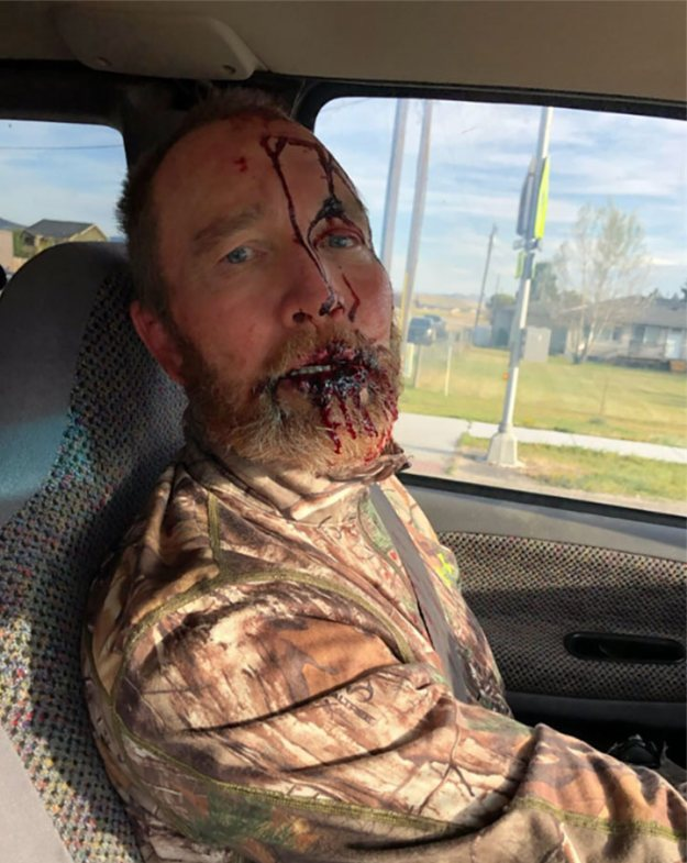 Unknown Grizzly bear victim 16 Sep 2019