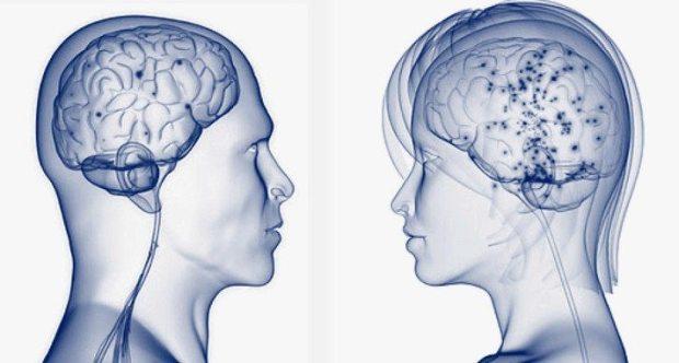 Ученые мужской мозг больше женского