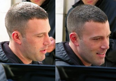 Ben Affleck Hair Transplant Before And After Photos Wigs