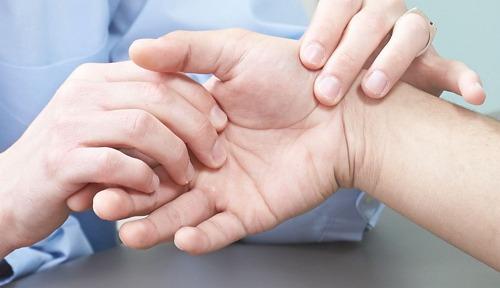 mengobati arthritis