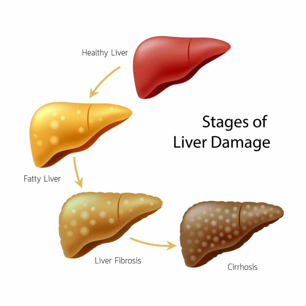 hight resolution of liver spotting