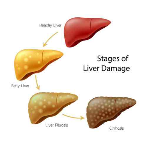 small resolution of liver spotting