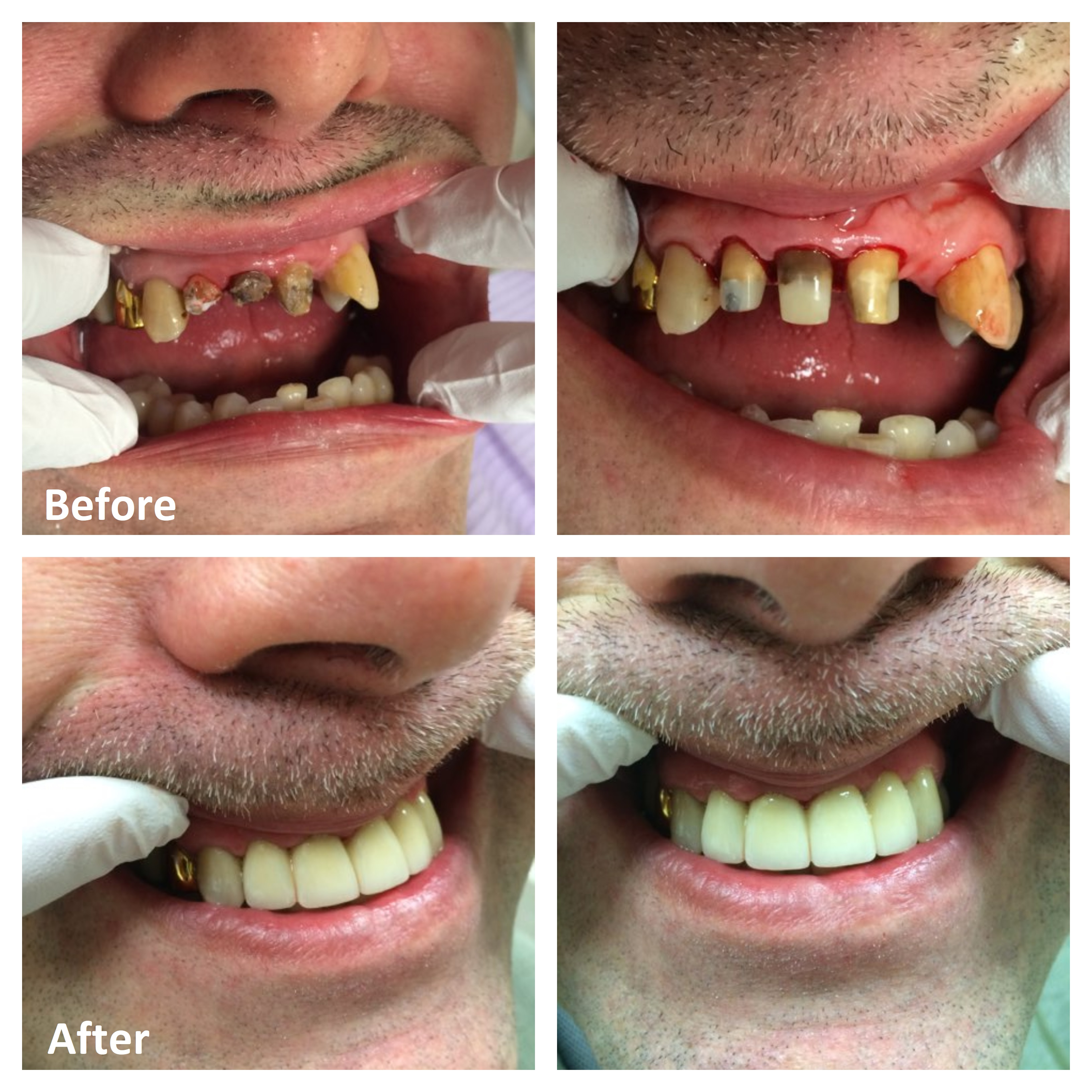 Tooth Crowns Amp Dental Bridges Ottawa