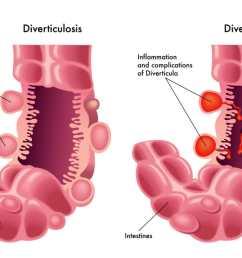 diverticular disease familydoctor org diagram of diverticulum [ 1200 x 735 Pixel ]