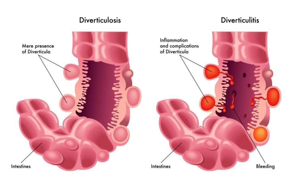 medium resolution of diverticular disease familydoctor org diagram of diverticulum