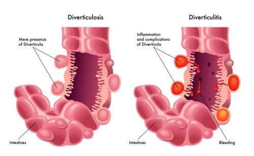 small resolution of diverticular disease familydoctor org diagram of diverticulum