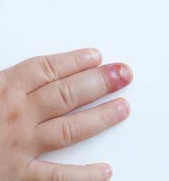 nail skin diagram [ 2048 x 1365 Pixel ]