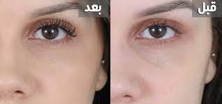 تقنية حديثة : علاج ارهاق العين خلال 20 ثانية فقط